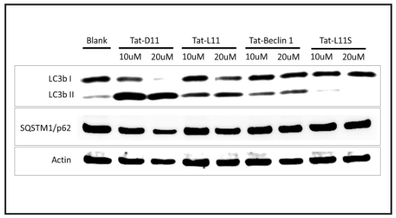 Induction of LC3B and downregulation of p62 in Helacells by Tat-D11 and Tat-L11.